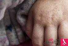 Photo of نصائح صحية للوقاية من انتشار الحمى القرمزية