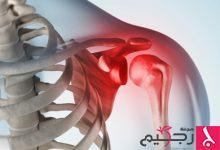 Photo of نصائح صحية: ما هي العلامات التي تشير إلى ضرورة إجراء جراحة الكفة المدورة