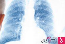 Photo of نصائح صحية للتعامل مع داء التليف الرئوي