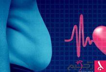 Photo of دراسة حديثة: البدانة قد تُسبب توقف القلب المفاجئ عند الشباب