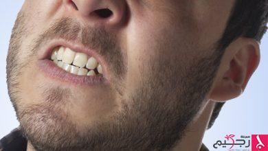 Photo of نصائح صحية للسيطرة على صرير الأسنان