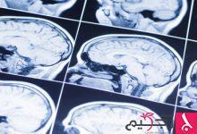 """Photo of نسج الدماغ """"المتميّعة"""" نتيجة السكتة الدماغية قد تُلحق ضررًا بالنسج السليمة"""