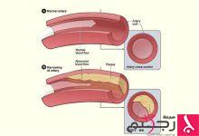 Photo of اكتشاف طريقة جديدة لحماية الأوعية الدموية من التصلب