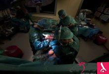 Photo of رجل بقلبين بعد عملية جراحية نادرة