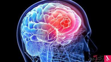 Photo of ماذا يحدث في الدماغ باللحظات الأخيرة قبل الموت؟