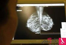 Photo of اكتشاف 24 طفرة جينية مجهولة تزيد خطر الإصابة بسرطان الثدي