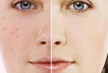 Photo of عادات يومية تسبب بثور الوجه