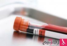 Photo of 5 أمراض تسبب نزول الدم مع البول تعرف عليها