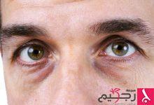 Photo of ليس للمظهر فقط.. هذا ما يقوله شكل وجهك عن صحتك