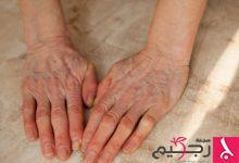 Photo of 4 أسباب لبروز العروق وخصوصاً في منطقة ظهر الكفين