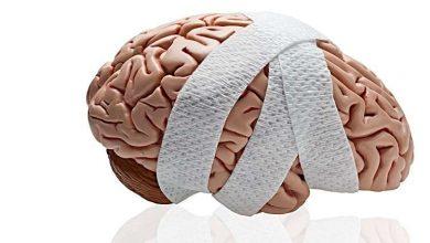 Photo of إصابات الرأس في الصغر تسبب الخرف لاحقا