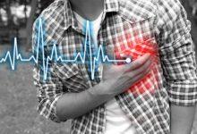 Photo of خفقان القلب: الأسباب، الأعراض، العلاج