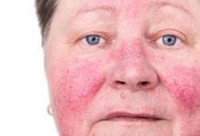 Photo of كل ما تريد معرفته عن مرض الوردية