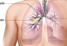Photo of دراسة تكشف سبب صعوبة علاج سرطان الرئة