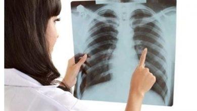 Photo of أمريكا: ازدياد معدلات سرطان الرئة لدى النساء