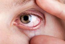 Photo of ماذا يعني ظهور بقع صفراء في العينين؟