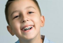 Photo of متى تكون دعامة الأسنان ضرورية للأطفال؟