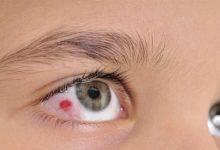 Photo of كيف تحمي عينيك من حروق الشمس في الصيف؟
