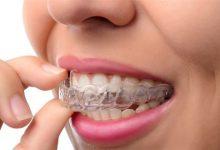 Photo of كيف تعالج تخلخل الأسنان لدى الكبار؟