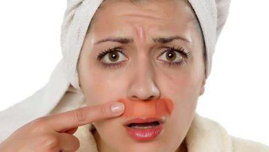 Photo of علاج التهاب البشرة بعد إزالة الشعر