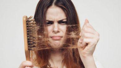 Photo of خلطة الصبار وعصير البطاطس لعلاج تساقط الشعر