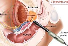 Photo of دراسة طبية توصي بعلاج مصابي سرطان البروستات بالموجات الصوتية
