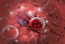 """Photo of """"الصحة الإماراتية"""" لـ 24: لا يوجد علاج سحري لمرض السرطان"""