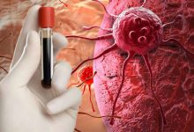 "Photo of تقنية جديدة تجبر الخلايا السرطانية على ""الانتحار"""
