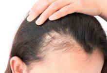 Photo of بذور الشمر وزيت جوز الهند لعلاج تساقط الشعر