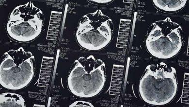 Photo of اكتشاف منطقة التشاؤم في الدماغ