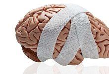Photo of إصابات الدماغ تؤدي إلى الانتحار!