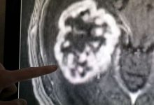 Photo of ورم في رأس رجل من خلايا الحيوانات المنوية
