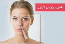 Photo of 7 طرق بسيطه لتخفيف رؤوس البثور السوداء