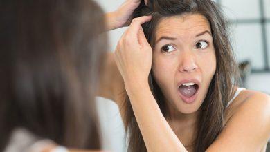 Photo of طرق ووصفات منزلية لعلاج فروة الرأس الجافة