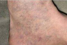 Photo of كل الناس تملك هذا العلاج للدوالي ( الفاريس ) في المنزل لكن القليل هم من يعرفونه !