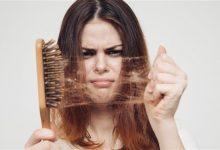 Photo of تساقط الشعر.. متى يستلزم استشارة الطبيب؟