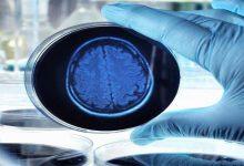 """Photo of """"خلايا الزومبي"""" أمل العلماء في القضاء على مرض ألزهايمر"""