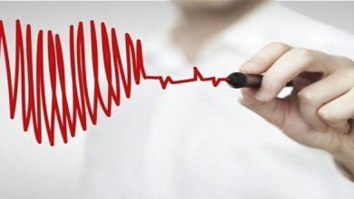 Photo of خلافاً للمتوقع.. مسكنات تهدد صحة القلب