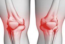 Photo of انزلاق (صابونة الركبة).. الأعراض والعلاج