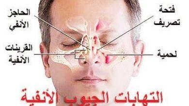 Photo of علاج التهاب الجيوب الانفية