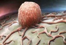 Photo of الخضيري يحدد أسباب الإصابة بالسرطان.. الأخيرة أخطرها