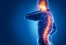 Photo of تكهّف النخاع , الأسباب , الأعراض , الاختبارات والفحوص , الوقاية