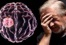 Photo of 5 أعراض مبكرة لأورام الدماغ السرطانية