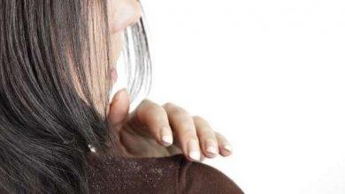 Photo of أفضل علاجات طبيعية لقشرة الرأس