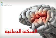 Photo of التعافي من السكتة الدماغية , الطريق إلى التعافي , معالجة السكتة الدماغية , المعالج الاجتماعي