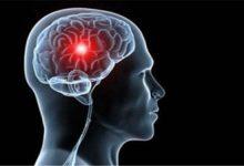 Photo of أم الدم الدماغيَّة , معالجةُ أمَّهات الدم الدماغية , سببُ حدوث أمَّهاتِ الدم الدماغية , الوقاية من أمَّهاتِ الدم الدماغيَّة