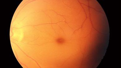 Photo of داي تاي-زاكس , أسباب داء تاي-زاكس , علاج داء تاي-زاكس , انتشار المرض
