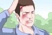 Photo of إصابات الرأس الشديدة , اعراض إصابات الرأس الشديدة , علاج إصابات الرأس الشديدة , الوقاية من إصابات الرأس الشديدة