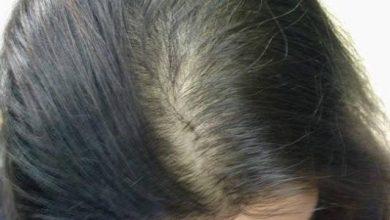 Photo of 3 طرق لعلاج الشعر الخفيف بالاعشاب الطبيعية