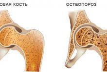 Photo of هشاشة العظام , اسباب هشاشة العظام , علاج هشاشة العظام